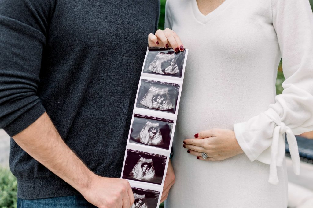 close up of male in black shirt next to female in off white dress holding a series of sonogram pictures